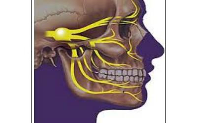 La névralgie faciale ( ou névralgie du trijumeau )